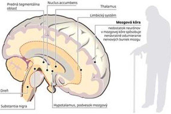 Rozumové sily, teda inteligenčný kvocient, si môžu Liptáci dať otestovať vo štvrtok v Liptovskom Mikuláši.