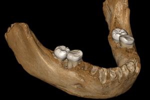 Virtuálna rekonštrukcia celej spodnej časti čeľuste.