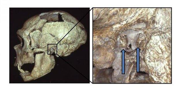 Záber vpravo ukazuje výrastky na kostiach pri ľavom zvukovode lebky neandertálca.