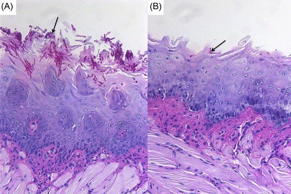 Liečba kvasinkou Pichia. Vľavo neliečené tkanivo myši, vpravo účinok dobrej huby.