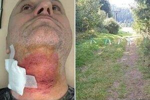 Vľavo zranený štvorkolkár, vpravo lano natiahnuté ponad cestu. Farebnými páskami ho označili policajti.