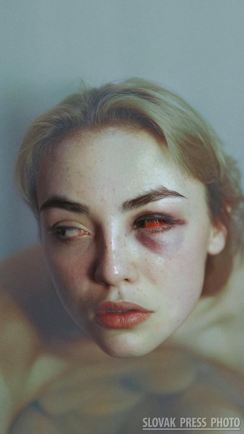 Víťazná fotografia kategórie Portrét - Šimona Müllerová