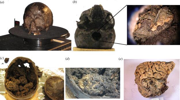 Fotografie z nálezu Heslingtonského mozgu. A) Lebka, ako ju našli pri vykopávkach. B) Spodná časť lebky. C) Lebka po otvorení. D) Útvar pripominajúci zmenšený ľudský mozog pokrytý usadeninami. E) Časť mozgu po očistení.