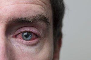 Zápal spojiviek sprevádza výrazné začervenanie očí.