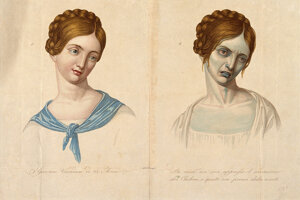 Mladá žena z Viedne pred a počas cholery.
