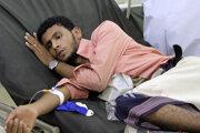 Muž s ochorením COVID-19 hospitalizovaný v jemenskom meste Aden.