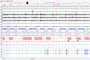 Screen obrazovky pacienta v spánkovom laboratórium.