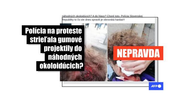 Tisíce Slovákov zdieľali na Facebooku hoax o tínedžerovi, ktorí len náhodou išiel okolo protestujúcich a polícia ho zasiahla gumovým projektilom.