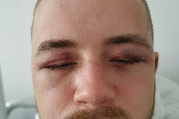 Takto vyzeral Jakub po bitke na policajnej stanici.