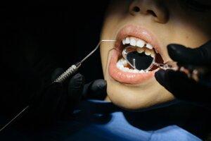 Čím je dieťa mladšie pri prvej návšteve zubára, tým menšia šanca je, že sa neskôr bude zubárov báť.