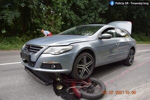 Desivý záber. Motocykel skončil pod kolesami auta.
