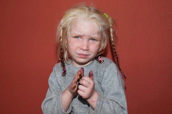 Prípad plavovlasého dievčatka z osady zaujal celý svet.