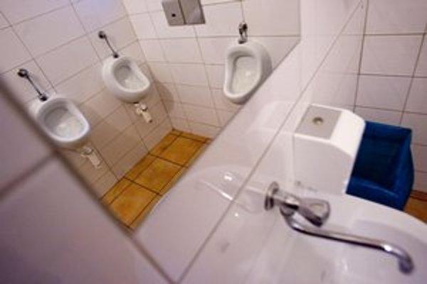 Wécko hliadka vyhodnotila ako najhoršie záchody tie v Umelke.