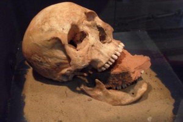 Nachzerer z talianskeho ostrova Nazzaretto Nuovo pri Benátkach, aby už ďalej nemohol požierať svoj hrob, do úst mu vložili tehlu.