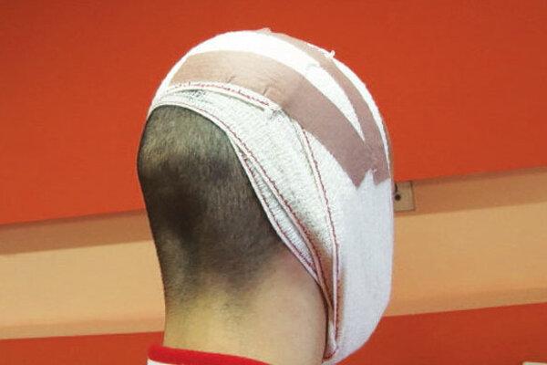 Matej utrpel ťažké zranenia hlavy.