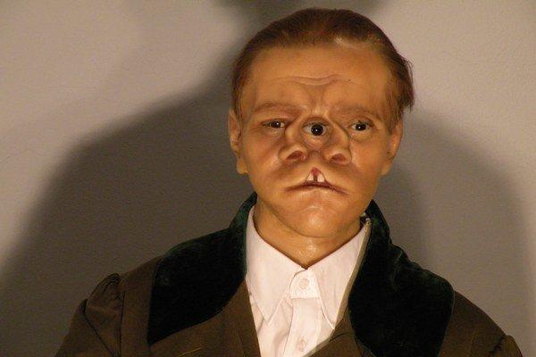 Bill Durks mal rozštep tváre avystupoval vcirkuse.