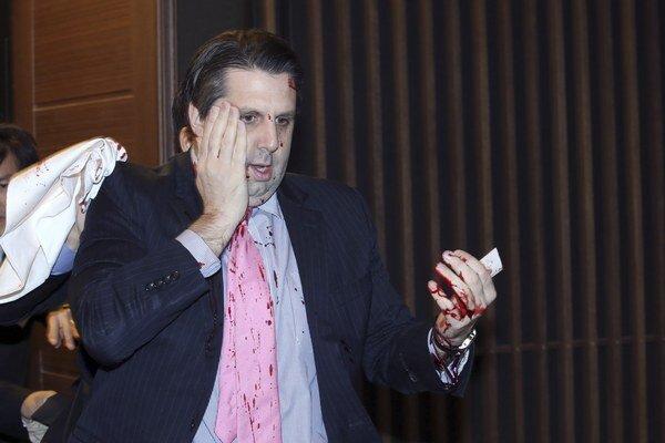 Zranený americký veľvyslanec v Južnej Kórei Mark Lippert.