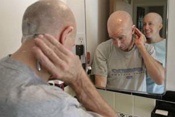Možno už onedlho nebudú pri užívaní liekov proti rakovine vypadávať vlasy, čo onkologickým pacientom život veľmi znepríjemňuje. ILUSTRAČNÉ