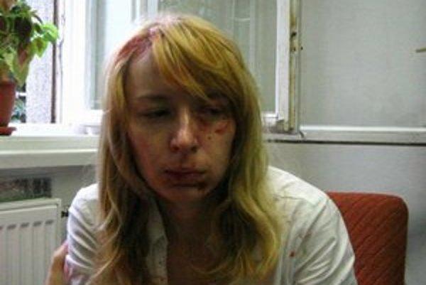 Hedviga Malinová mala na tvári stopy po útoku.