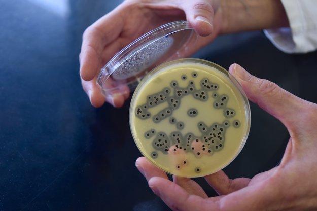 Patogénne baktérie sa kultivujú a izolujú na špecifických, agarových médiách.