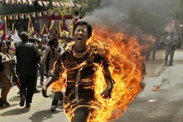 Muža previezli do nemocnice s vážnymi popáleninami.