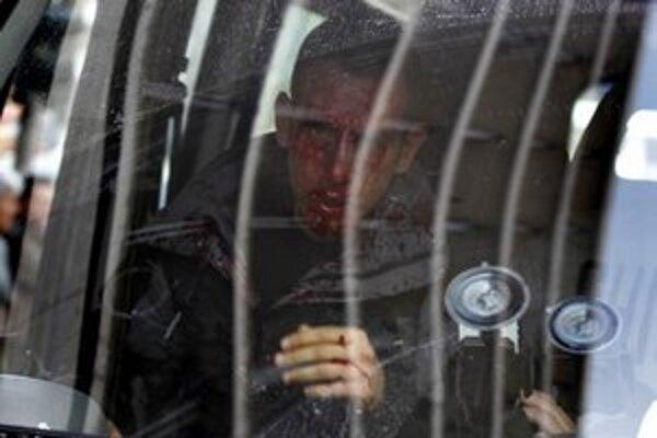 Zranený policajt po útoku demonštrantov.