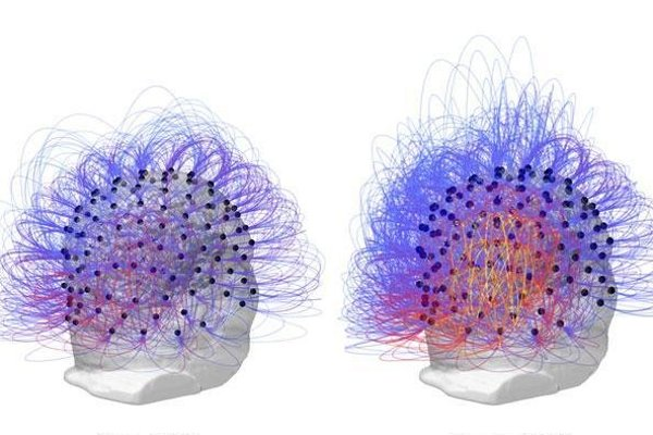 Mozog pacienta pred stimuláciou blúdiaceho nervu (vľavo) a po stimulácii (vpravo).