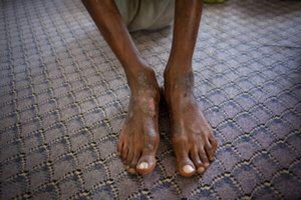 Rany na nohách líbyjského väzňa.
