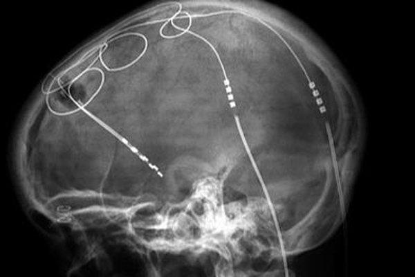 Hĺbková stimulácia mozgu pomocou zavedených elektród.