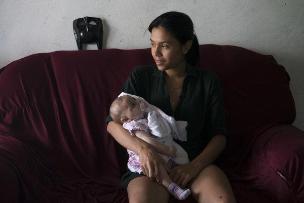 Vírus zika ohrozuje zdravie novorodencov.