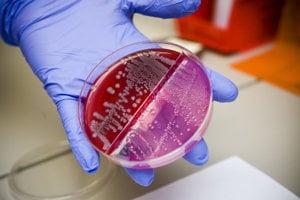 Baktéria e.coli kultivovaná v petriho miske.