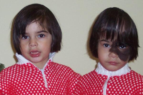 Reňuška a jej dvojička Jessica, ktorá vždy stojí verne po boku svojej sestričky ako malý rytier.