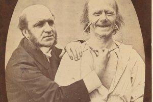 Francúzsky lekár Guillaume Duchenne de Boulogne s mužom, ktorému vyvolal úprimný úsmev na tvári elektrošokmi.
