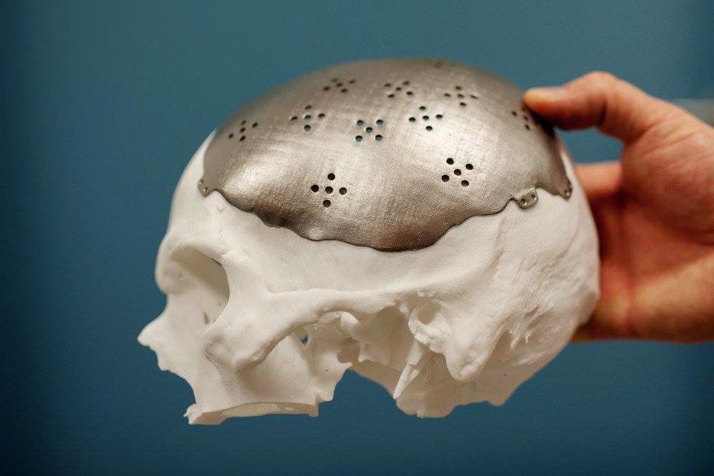 CEIT biomedical engineering vyrába na 3D tlačiarni kostné náhrady, ktoré sa do budúcna môžu stať základom pre prvého umelo vytvoreného človeka. (zdroj: CEIT biomedical engineering)