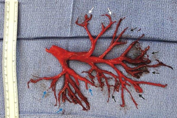 Krvná zrazenina, ktorú pacient vykašľal, bola dokonalým odliatkom dýchacích ciest.