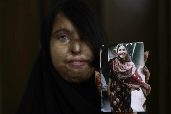22-ročná Naila Farhat z Pakistanu prežila útok kyselinou v roku 2003, keď ju napadol muž, ktorého návrh na sobáš odmietli jej rodičia.