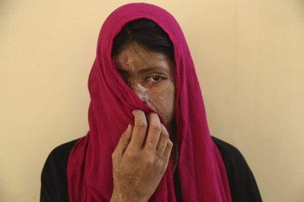 Sana Nazová z Pakistanu je obeťou kyselinového útoku.