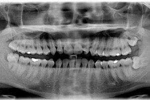 Zuby múdrosti pomáhali našim predkom prežúvať surovú potravu. Keď ľudia začali prechádzať na spracovanú stravu, posledné stoličky stratili svoj význam. Dnes ľuďom často spôsobujú problémy.