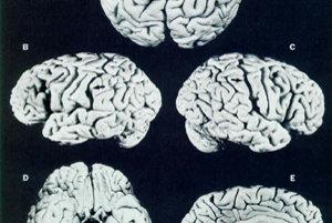 Einsteinov mozog.