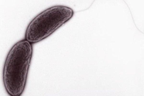 Caulobacter crescentus.