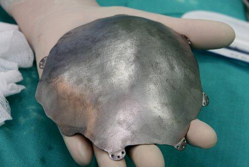 implantat-4_r3578_res.jpg