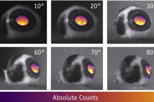 Rovnaký jav zachytený v prasacom oku. Číslo v pravom rohu každého záberu určuje uhol kamery.