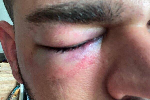 DJ Mairee utrpel zranenie. niekto ho zboku napadol.