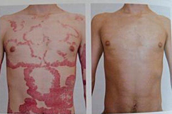 Pacient. Rozdiel vzhľadu kože pred a po liečbe biotikami.