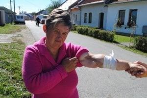 Zjazvená ruka. Pani Anna má ruku samú jazvu, tie občas zvyknú hnisať. V prešovskej nemocnici ju zachránili pred amputáciou.
