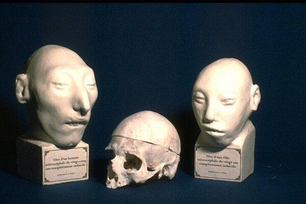 Príklady mikrocefálie v múzeu v Lyone
