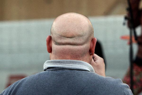 Implantované vlasy môžu vyrastať z vytlačených folikulov.
