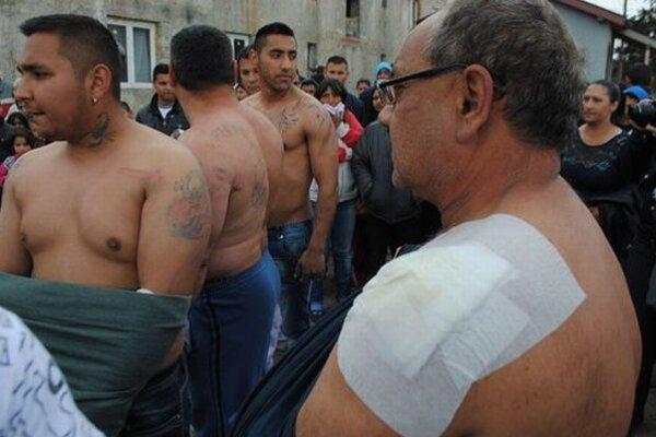 Muži z Vrbnice ukazujú svoje rany.