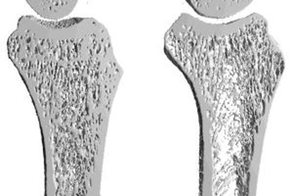 V dôsledku osteoporózy dochádza k úbytku kostnej hmoty.