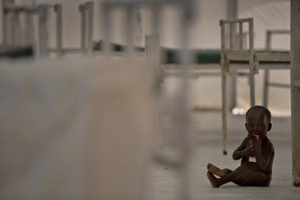 Podvýživené dieťa v Južnom Sudáne.